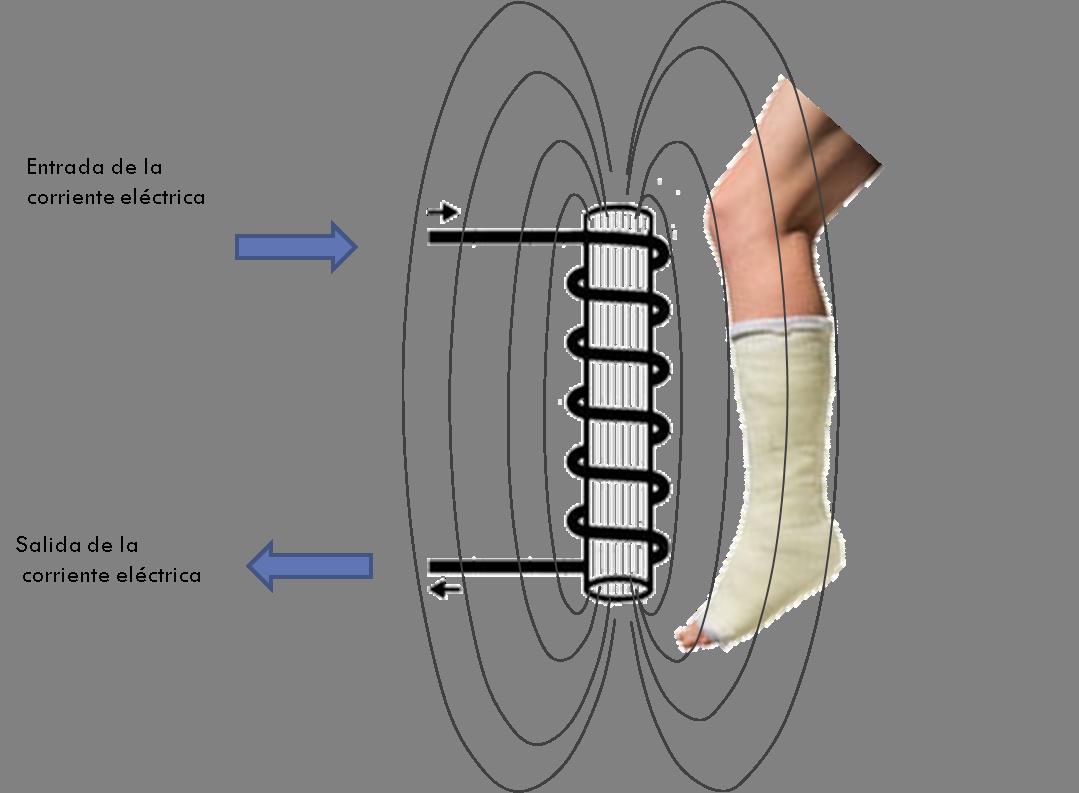 macchina per magnetoterapia